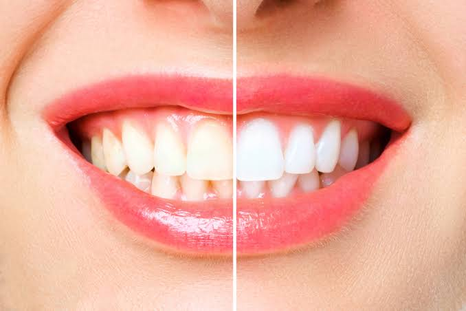 Teeth Bleaching another Best Way To Whiten Teeth